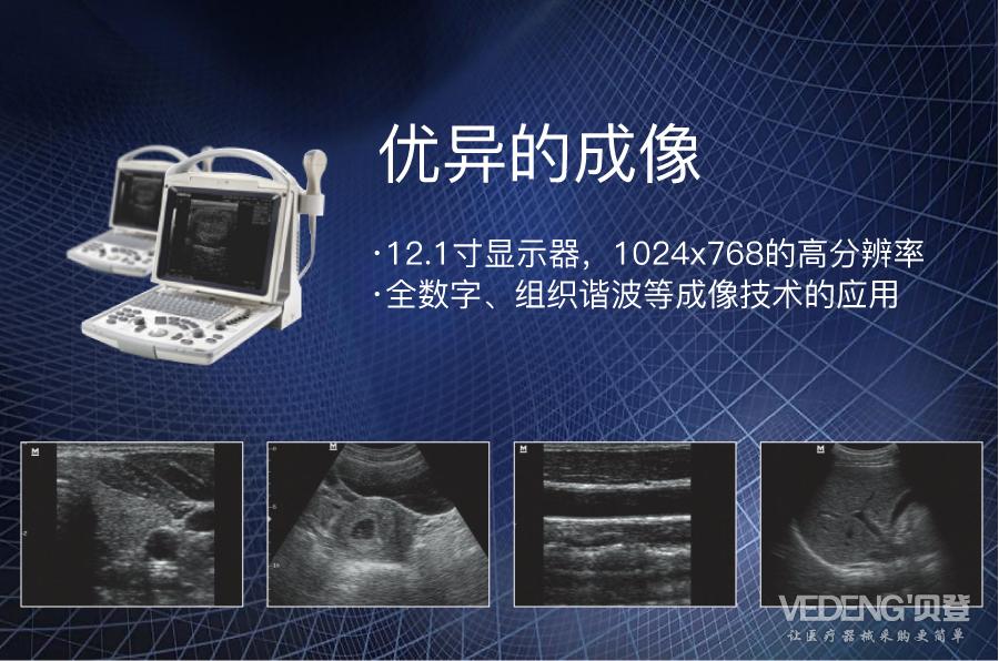 迈瑞便携式黑白b超机dp-20_优异的成像 ·12.1寸显示器,1024x768的高分辨率 ·全数字、组织谐波等成像技术的应用亮点图_贝登医疗.jpg