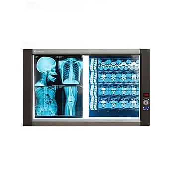 兆丰光电  X射线胶片观片灯 ZG-2B