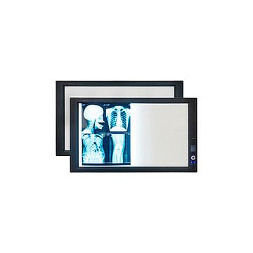湖南兆丰 X射线胶片观片灯 ZG-1